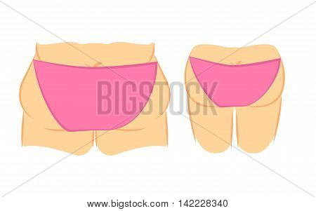 Medical vector illustration two types female back in panties bikini. fat and thin. Plastic surgery cellulite removal and liposuction. Butt lift correction.