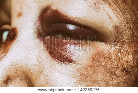 Domestic violence - girl face with monocle