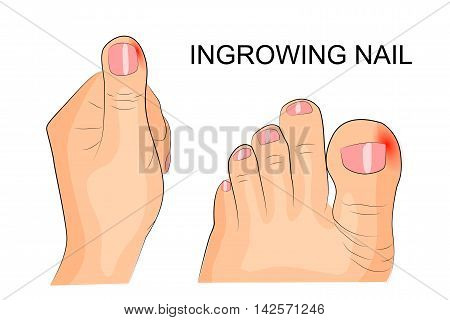 illustration of ingrowing of the nail. the fingers and toes. inflammation