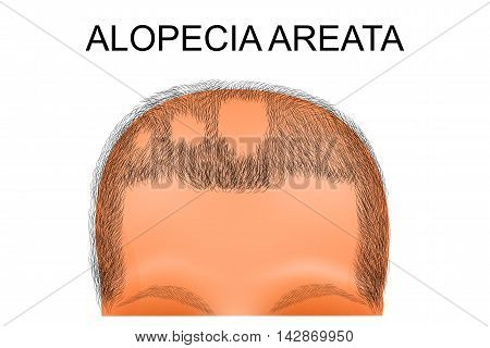 illustration of a head of person suffering from alopecia areata poster