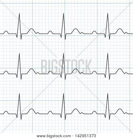 Vector cardiogram, flat design ,Heart Beat and Electrocardiogram
