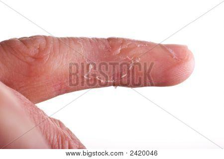 Eczema On Finger