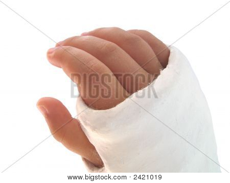 Arm In Plaster, Isolated On White
