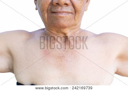 Close Up Chest Of Old Woman On A White Background