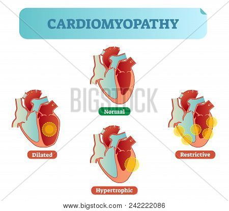 Cardiomyopathy - Human Heart Medical Disorders Cross Section Diagram, Vector Illustration Examples W