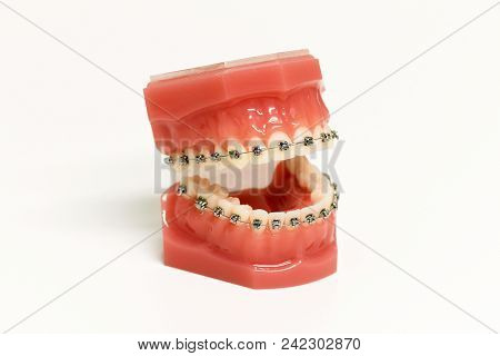 Dental Model With Orthodontic Appliance