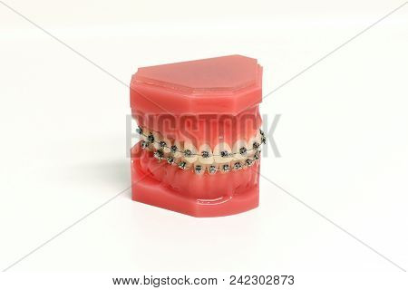 Orthodontic Mold Of A Dental Appliance