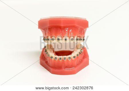 Orthodontic Model Of Teeth With Braces