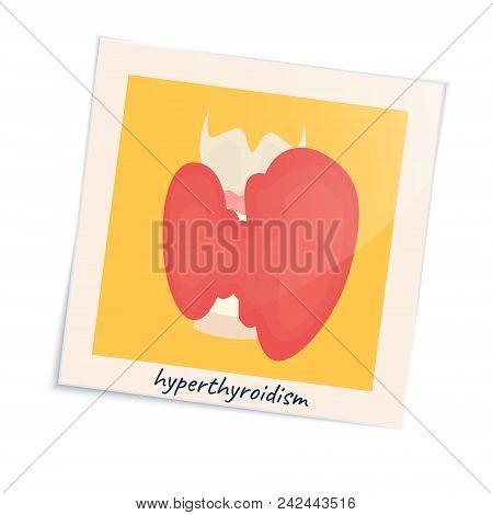 Thyroid Gland Disorder Poster. Hyperthyroidism Goiter Symbol In A Photo Frame. Cute Unhealthy Intern