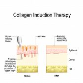 Collagen induction therapy (microneedling) is a surgical for remove wrinkles, scars, stretch, marks, pigmentation. skin needling procedure, repeatedly puncturing the skin with tiny, sterile needles (microneedling the skin). poster