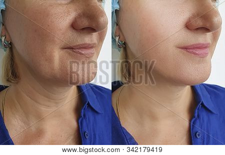Woman Wrinkles Face Before And After Treatment, Double Chin