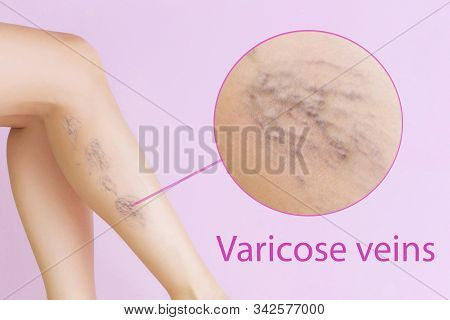 Female Legs With Varicose Veins. Concept Of Human Health And Disease. Vascular Diseases, Problems Of