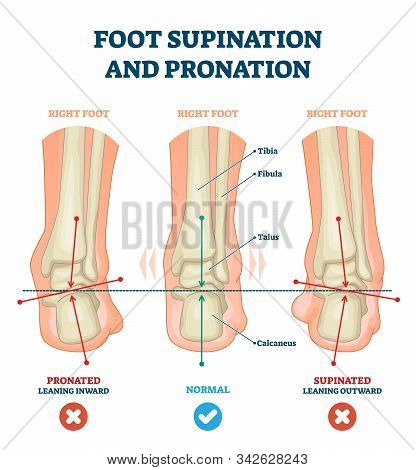 Foot Supination And Pronation Vector Illustration. Labeled Medical Scheme With Incorrect Leg Joint M