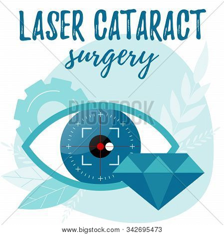 Laser Cataract Surgery Illustration. Refractive Lens Exchange Concept.