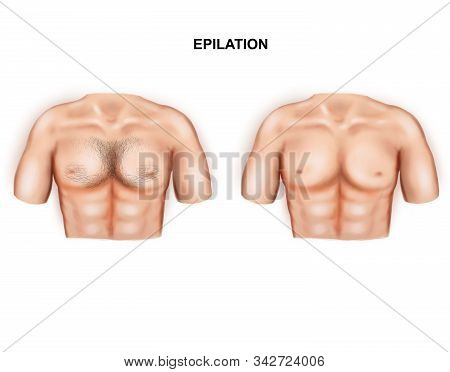 Illustration Of The Male Breast Hair Removal. Epilation.