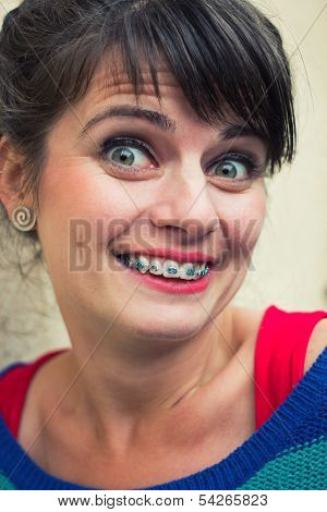 Surprised Woman Wearing Braces