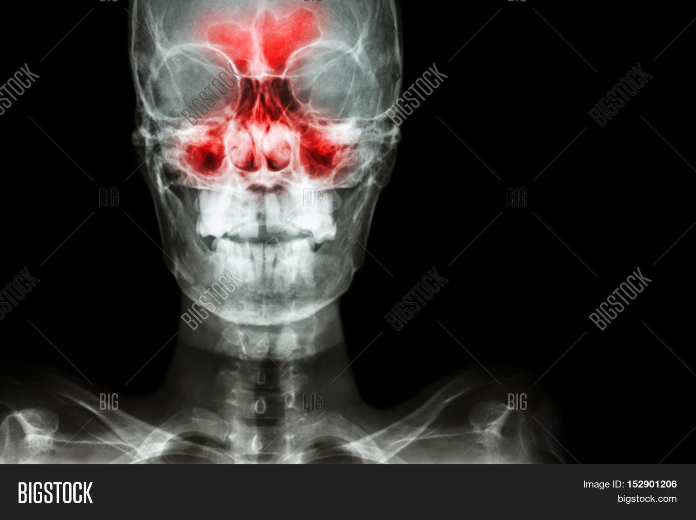 Sinusitis. Film X-ray Image & Photo (Free Trial) | Bigstock