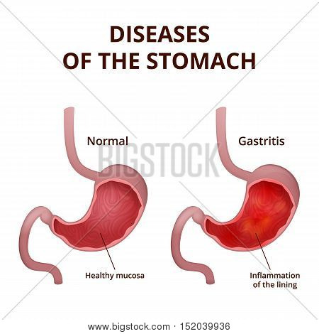 medical poster with a detailed diagram of the structure from the inside of the stomach, digestive system diseases - gastritis