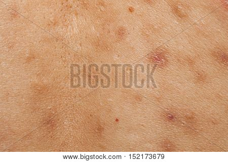 Boy with problematic skin and acne scars in the back