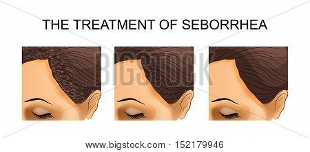 illustration of the treatment of seborrhea. before and after