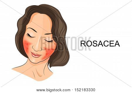 illustration of rosacea on the girl's face. Dermatology poster