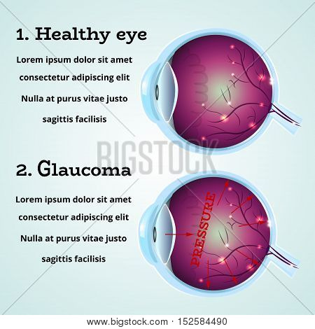 Human healthy eye and Glaucoma disease anatomy structure.Medical infographics for ophthalmology clinic, vector illustration.Cause of Glaucoma on eye cross section - high level pressure, white wallpaper.