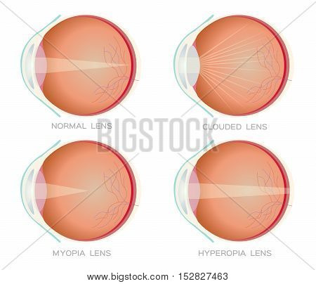 Normal , Myopia , hyperopia and clouded eye lens vector. Eye vision disorder. anatomy