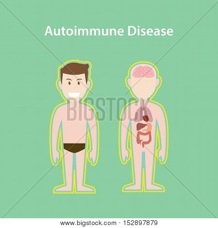 autoimmune disease system illustration with cartoon human man body with protection effect vector