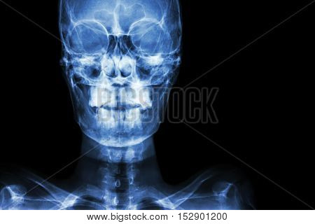 film x-ray Skull AP : show normal human's skull and blank area at right side