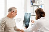 medicine, healthcare, surgery, radiology and people concept - doctor showing x-ray of spine to senior man at hospital poster