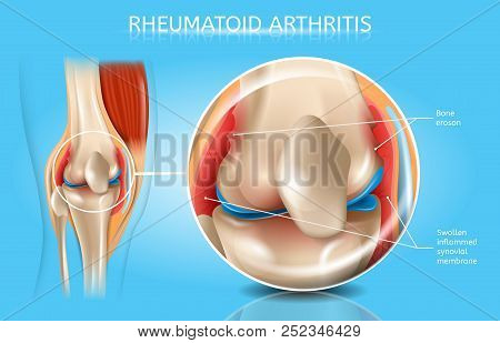 Rheumatoid Arthritis Realistic Vector Anatomical Chart With Magnified Inflamed And Swollen Synovial