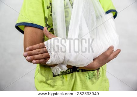 Child With Broken Arm - Hand In Cast