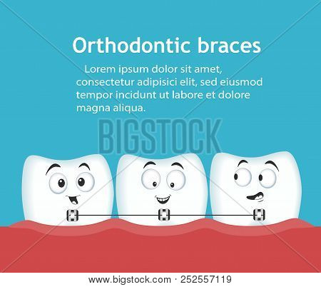 Orthodontic Braces Banner With Teeth Characters. Dental Clinic Services. Alignment Of Teeth With Bra