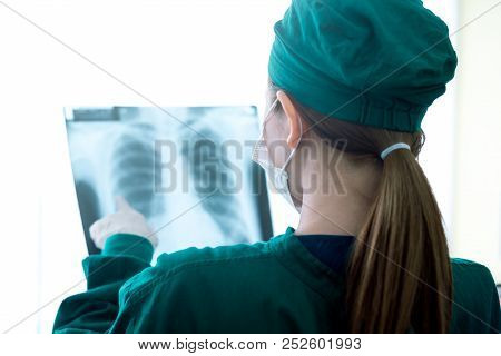 Female Women Medical Doctor Looking At X-rays In A Hospital .checking Chest X Ray Film At Ward