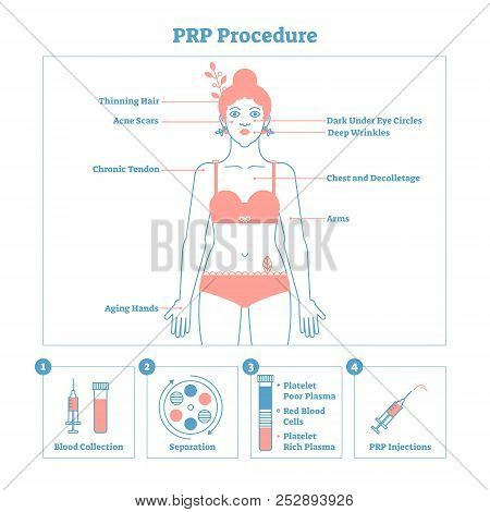 PRP Procedure vector illustration graphic diagram, cosmetology procedure scheme. Women beauty and skincare. Line style clean design poster with labels. Informative poster. poster