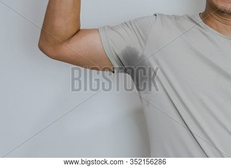 Men With Sweating Armpit And Has A Body Odor