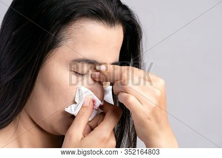 Nosebleed , A Young Woman Suffering From Nose Bleeding And Using Tissue Paper For Stop Bleeding. Hea