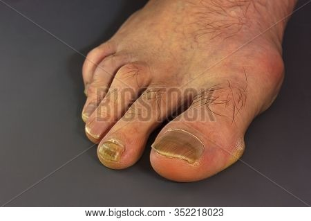Foot Fungus On The Nails. Nail Fungus, Damaged Toenails Due To Improper Shoes. Protruding Joint. Unf