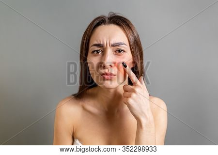 The Concept Of Rosacea. A Caucasian Brunette Woman Points A Finger At A Red Cheek With Inflammation.