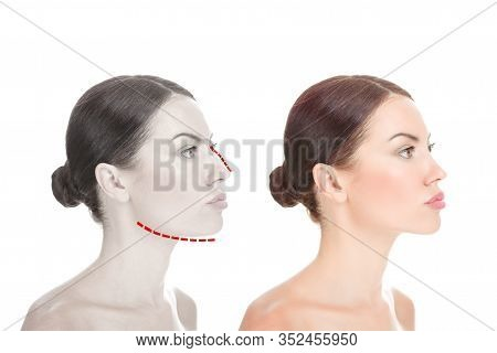 Face Beauty, Nose And Chin Correction, Rhinoplasty, Genioplasty, Chin Augmentation Surgery. Girl In