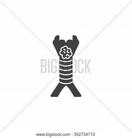 Laryngeal Cancer Vector Icon. Filled Flat Sign For Mobile Concept And Web Design. Throat Cancer Glyp