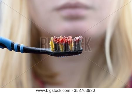 Toothbrush With Blood Closeup. A Woman Discovered Bleeding Gums While Brushing Her Teeth. Gingivitis
