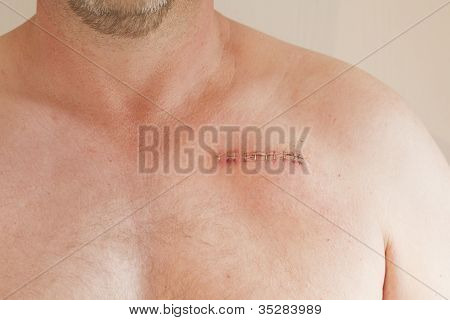 Pacemaker Scar