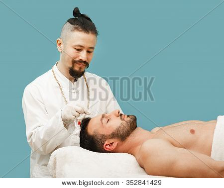 Acupuncture Treatment For Man Headache And Migraine. Certified Acupuncturist Treats A Mans Migraines