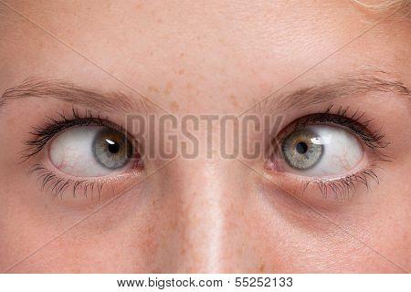 Closeup Cross-eyed