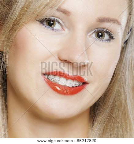 Happy smiling girl with dental braces - teeth straighten tooth hygiene dentistry clinic healthy lifestyle. poster
