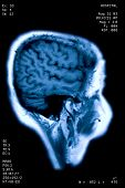 Photo of E.T. magnetic resonance poster