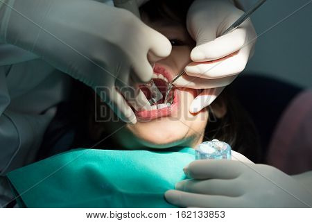 Dental treatment close-up children patient mouth with medical tools