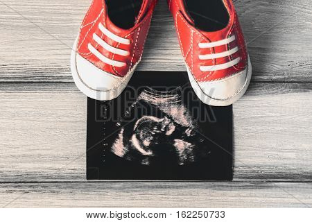 Ultrasound photo and baby boots on grey wooden background