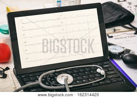 Cardio On A Doctor's Computer Screen